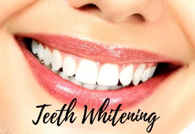 Teeth Whitening Middletown and Hamilton Township NJ